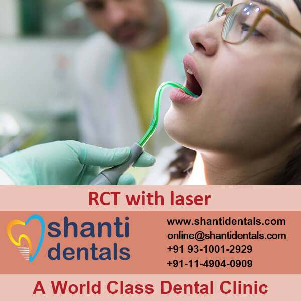 Best Quality Root Canal Treatment Services in Rohini, Delhi