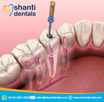 Painless Root Canal Treatment in Rohini, Delhi