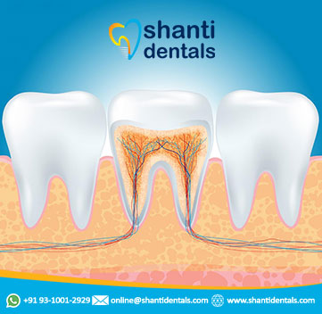 Root Canal Treatment in Delhi