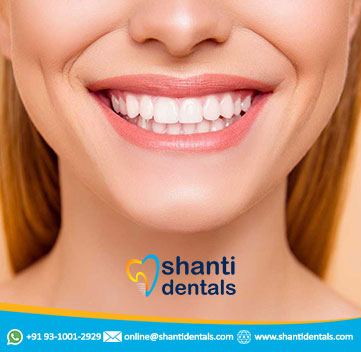 Full Mouth Rehabilitation Treatment Services in Pitampura