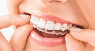 Orthodontic dental treatment at best price - Eazyalign