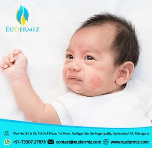 Common Skin Problems in New Born baby Treatment at Eudermiz